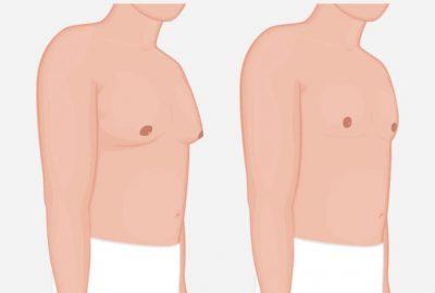 測量男性乳房縮小手術的結果